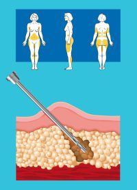 فتيات مين تعرف كم تكلف عملية شفط الدهون و وين