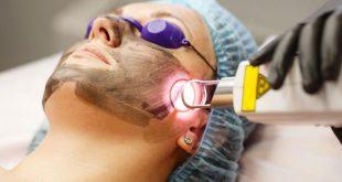 الليزر الكربوني لنضارة الوجه - دكتور زد